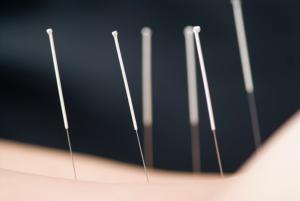 akupunktura 2